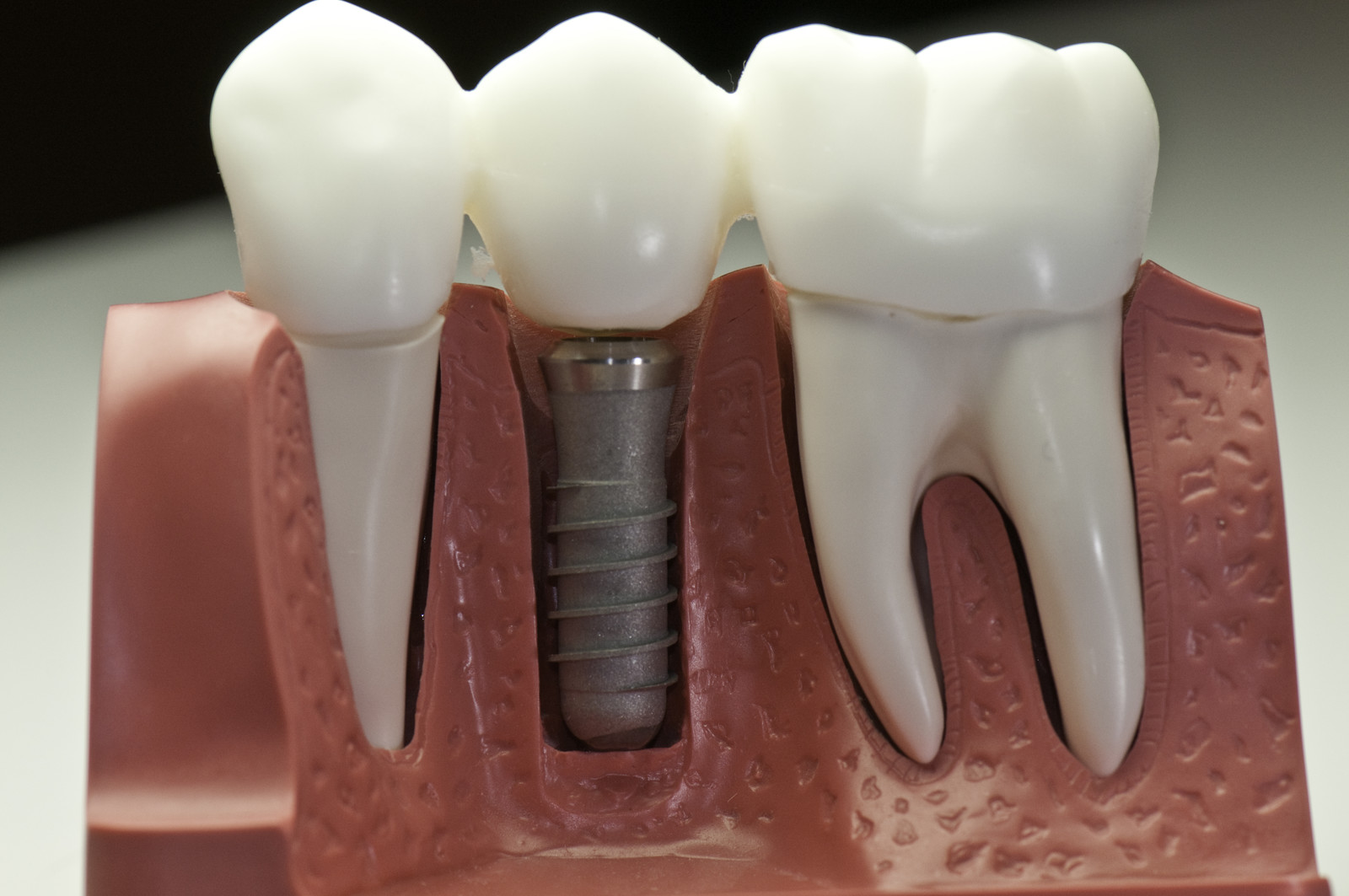 Image result for Truth About Dental Implants